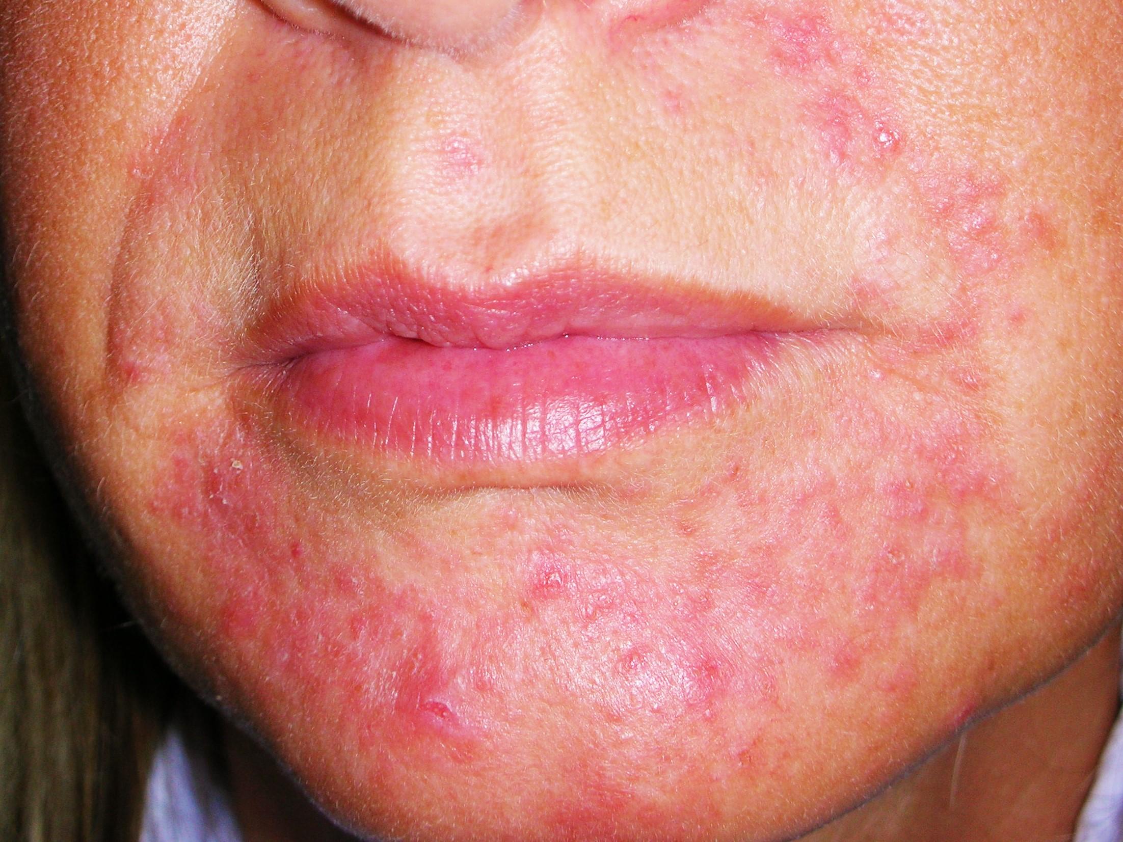 Dermatite Periorale Quale Cura Secondo Dermaclub